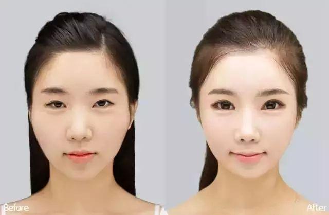 做双眼皮整形的赵红艺和李斌斌哪个更厉害一些?