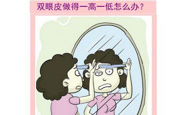 杭州双眼皮修复知名专家排行榜  杭州最好的双眼皮修复专家排名