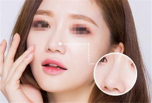 南京隆鼻专家排行榜 南京隆鼻最好的专家有哪些?