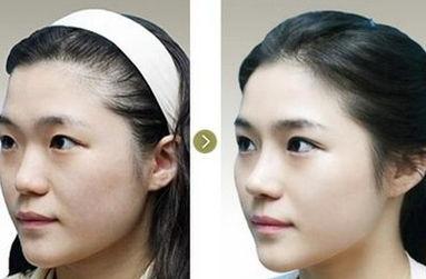 昆明隆鼻最好的专家排行榜 昆明隆鼻最好的专家有哪些?