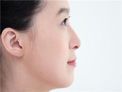 深圳玻尿酸隆鼻哪个医院和医生做的好?多少钱?