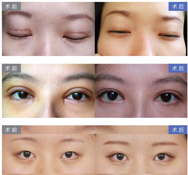 尹度龙双眼皮修复案例