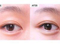 北京艾玛李方奇双眼皮修复案例  北京艾玛李方奇双眼皮修复技术怎么样?