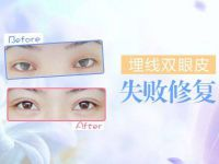 北京双眼皮修复整形专家王世勇和王振军哪个更好?