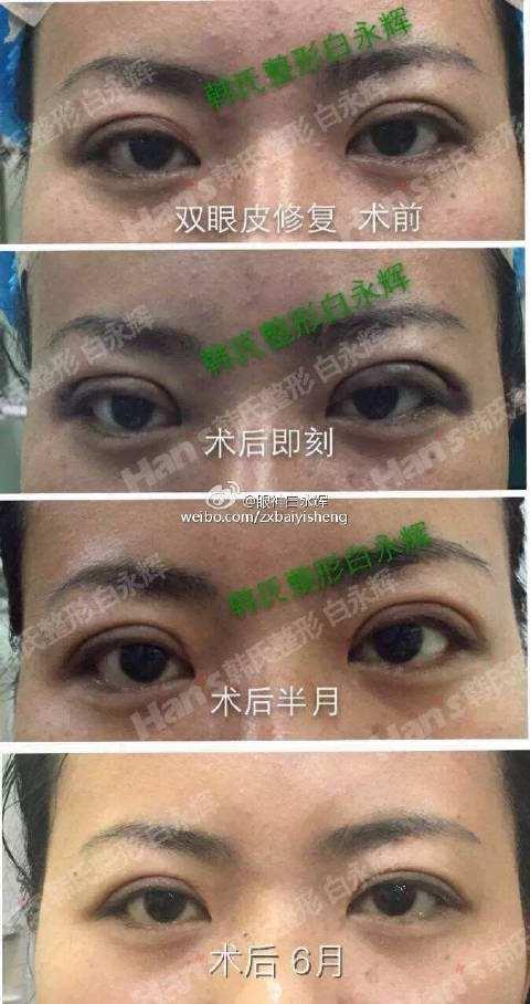双眼皮修复案例