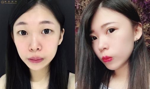 郑州做双眼皮的专家有哪些?哪个医生性价比高?