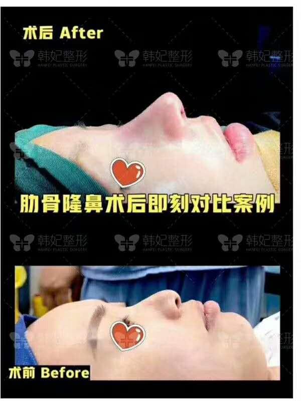 广州韩妃整形医院欧阳春和刘志刚哪位医生隆鼻技术好?
