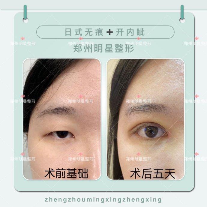 日式无痕双眼皮案例