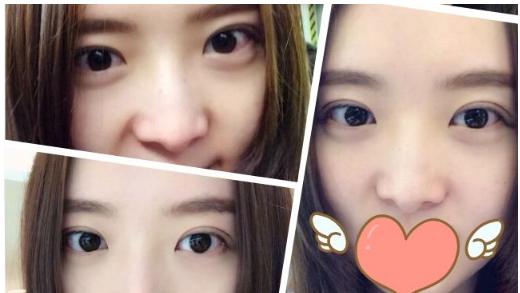 李天石双眼皮案例