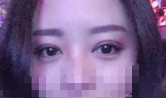 刘飞双眼皮案例