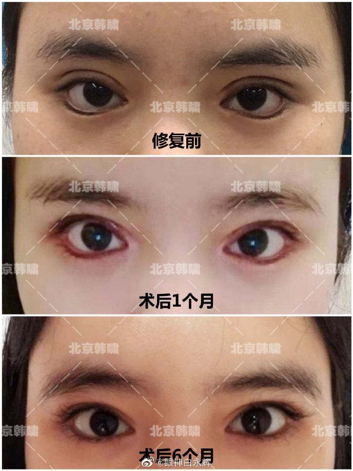 白永辉双眼皮修复