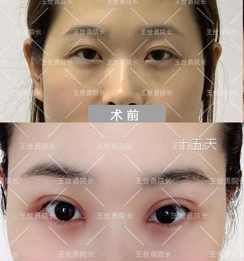 中国哪一位医生修复双眼皮最好?