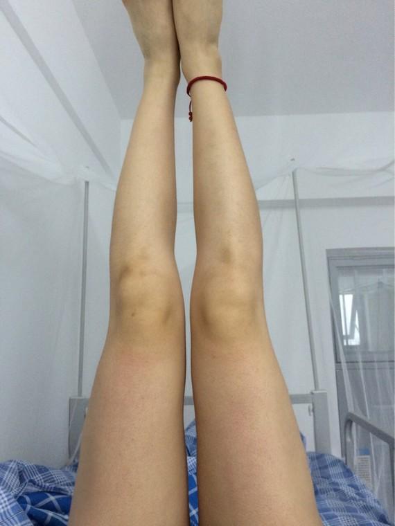 大腿抽脂凹凸不平哪位专家修复好?怎么修复的?