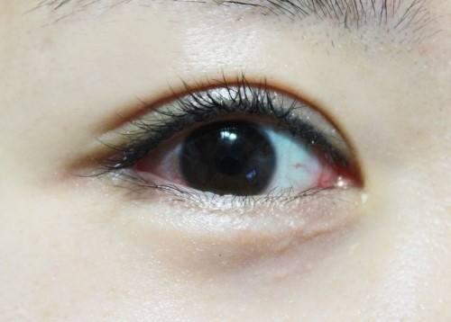 西安双眼皮专家有哪些?哪个医生做的自然性价比高?