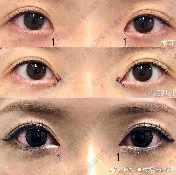内眼角修复案例