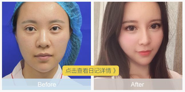 徐晓雯双眼皮修复案例