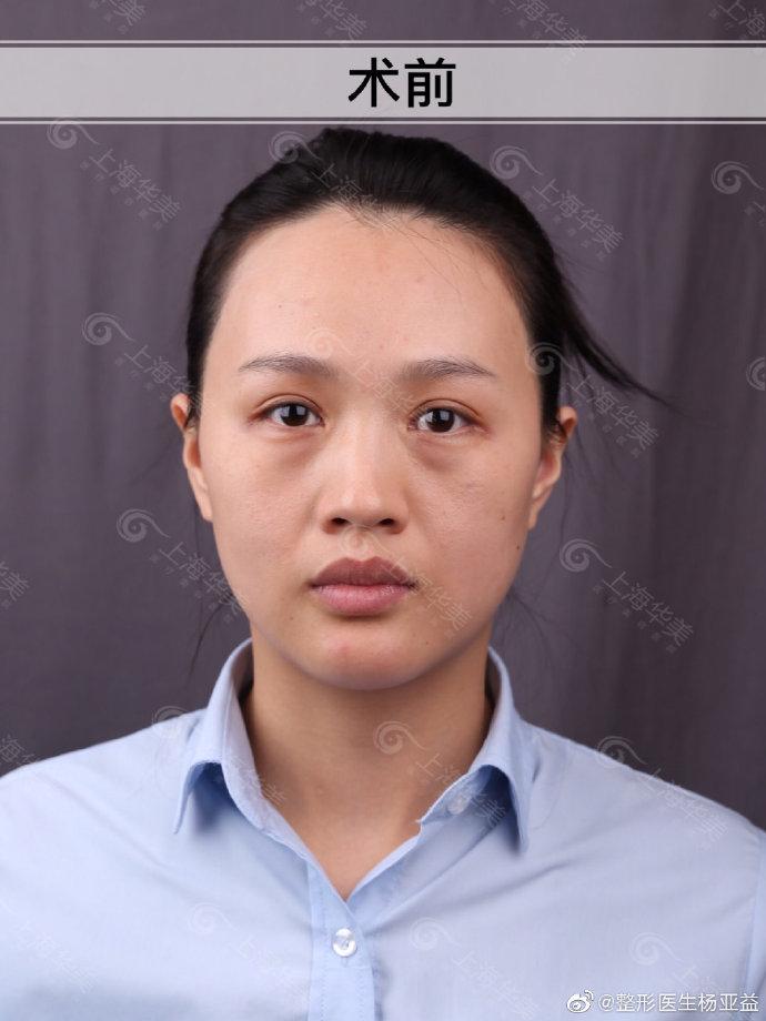 杨亚益双眼皮修复案例