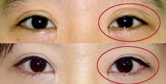 上海最好的修复双眼皮专家排行榜
