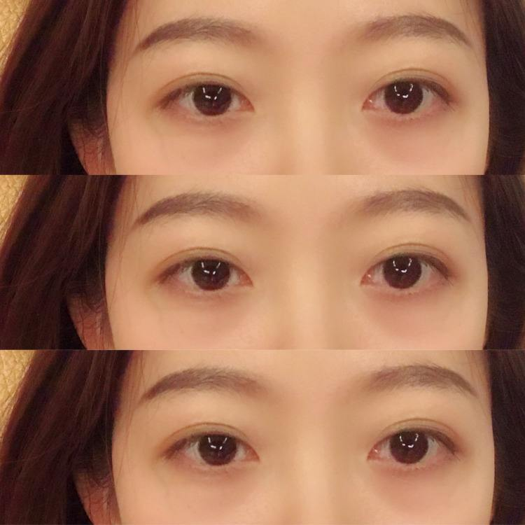 北京知名双眼皮医生和双眼皮修复专家都有哪些?