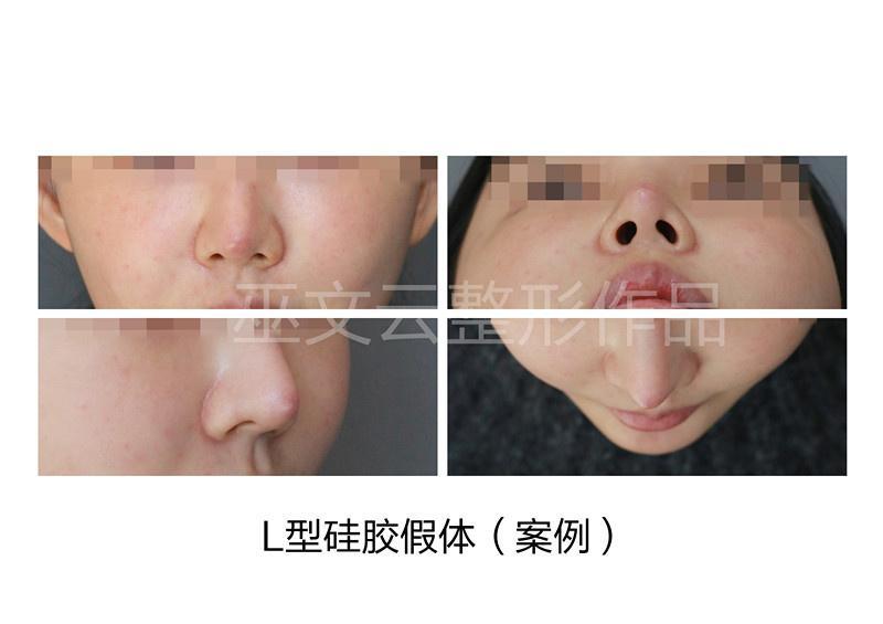 北京刘彦军和巫文云哪个鼻子做得好?