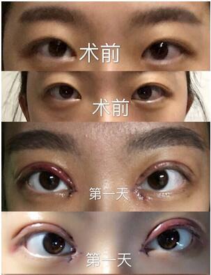 靳小雷双眼皮修复案例