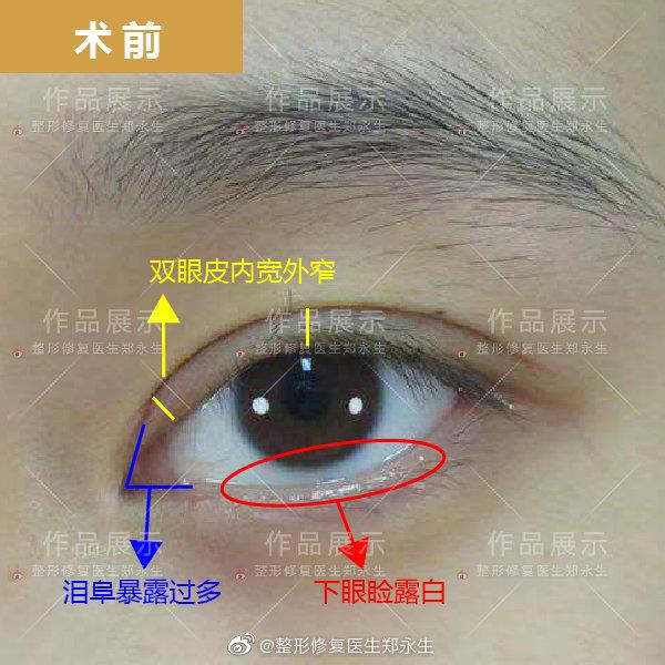 郑永生双眼皮修复
