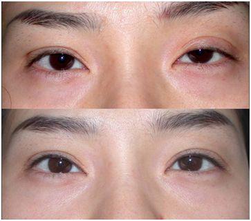 北京知名双眼皮修复专家哪个医生好?刘风卓对比韩勋