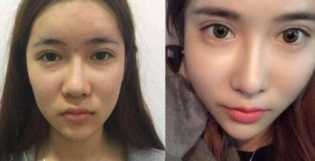 北京知名隆鼻专家、鼻修复专家和隆鼻费用
