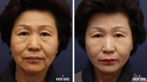 上海九院李青锋和张余光做面部提升哪位好?