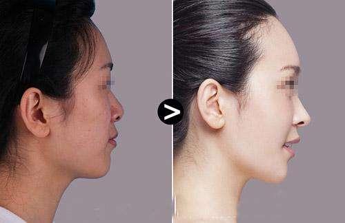 上海九院自体隆鼻价格是多少?陈付国和李圣利哪个医生做的好?