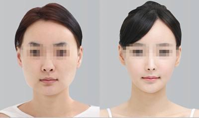 上海磨骨和下颌角哪个做的最好?李志海和何晋龙哪个好?