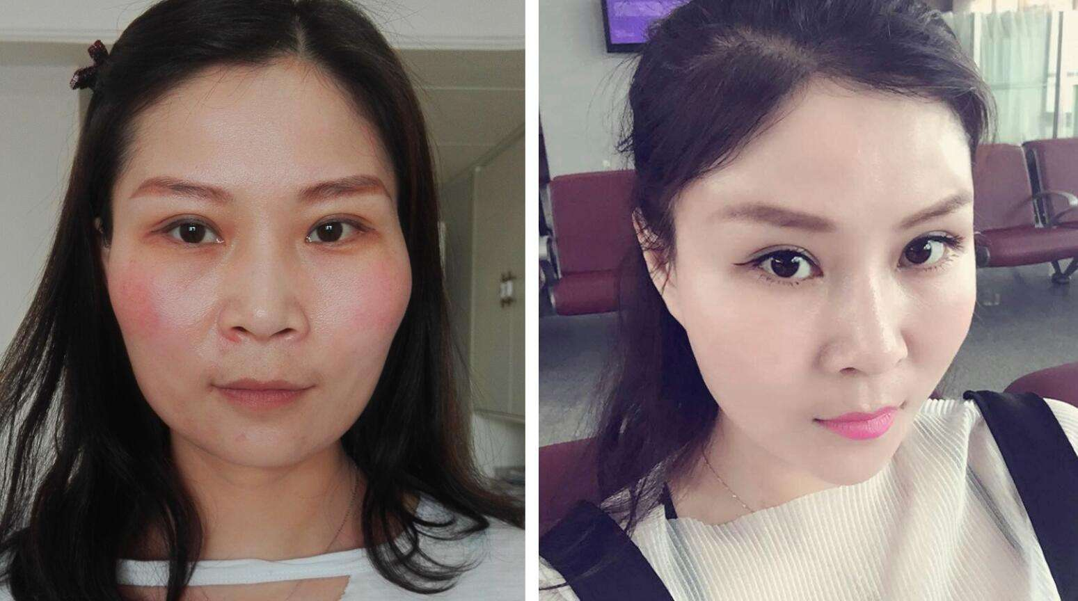 上海做面部填充哪个医生最厉害?大概多少钱?