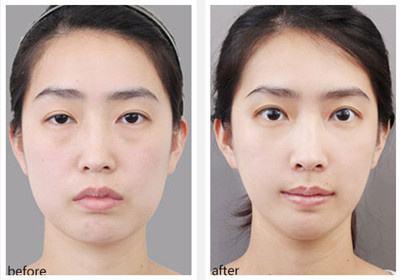 冯传波双眼皮修复案例