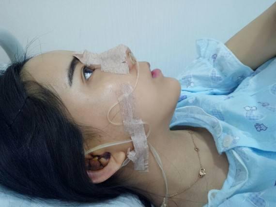 广州做鼻修复比较出名的专家有哪些?肋软骨隆鼻哪个好?