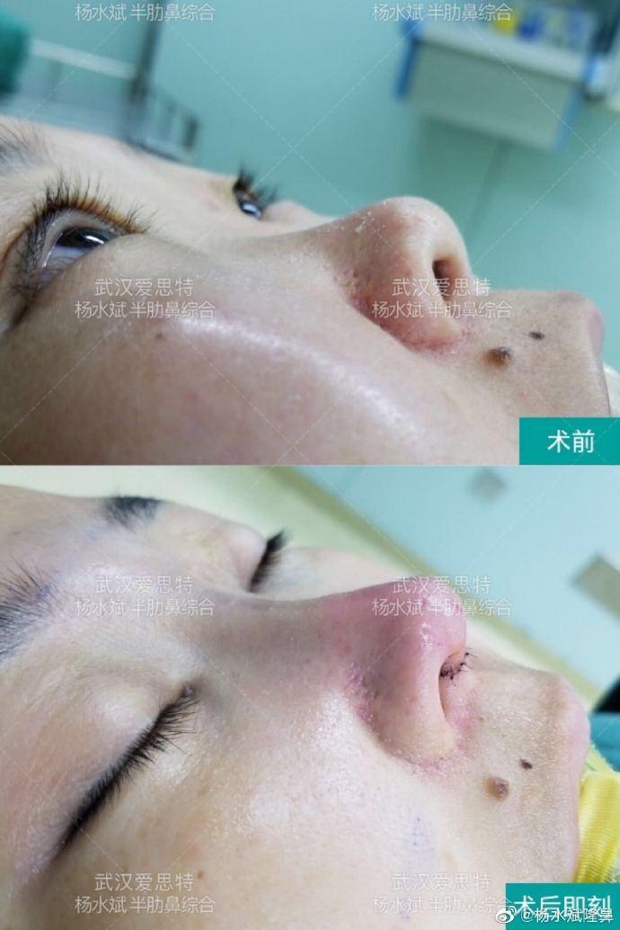 杨水斌半肋鼻综合案例