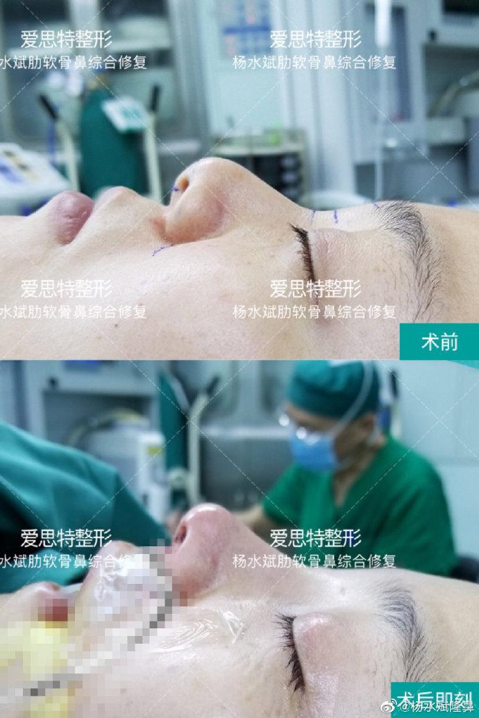 杨水斌肋软骨鼻综合修复案例