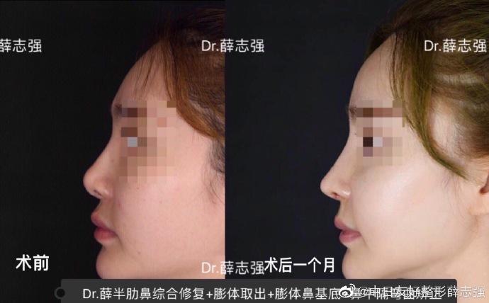 北京权威鼻修复专家都有哪些,大概价格多少?