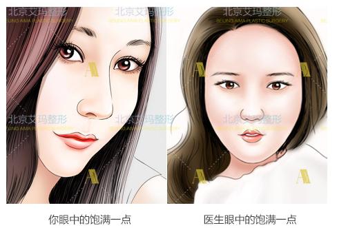 北京艾玛韦元强和上海九院曹卫刚面部脂肪修复谁好?