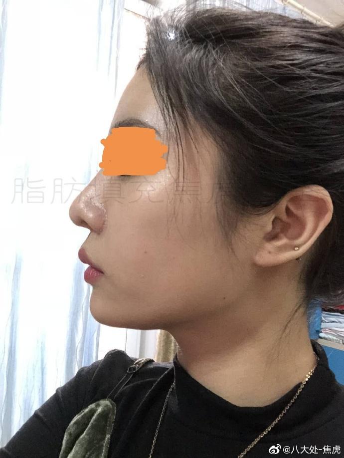 焦虎面部脂肪填充案例