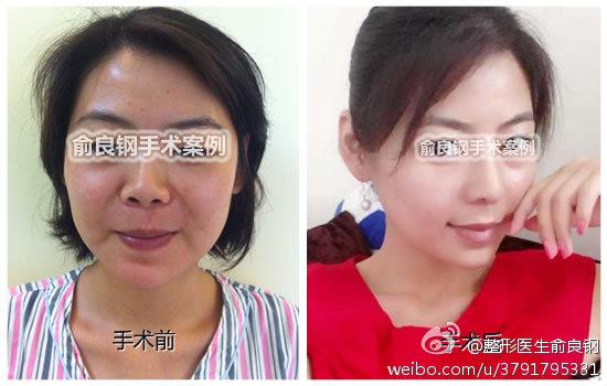 俞良钢改脸型案例