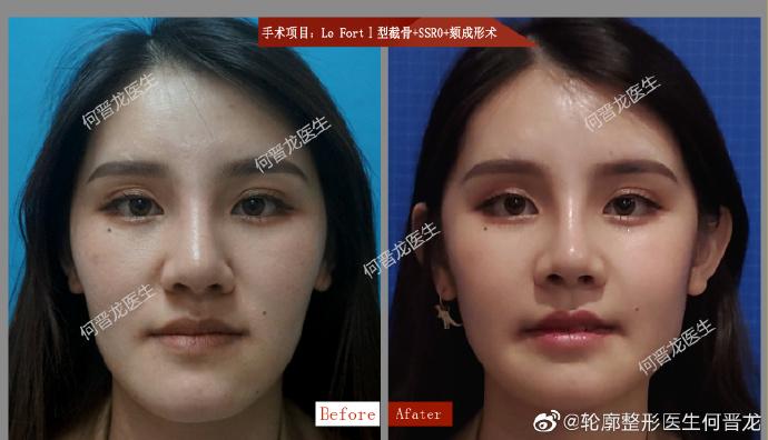 何晋龙改脸型案例