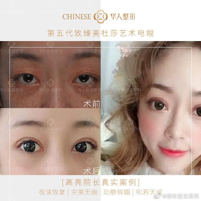 高亮双眼皮修复案例