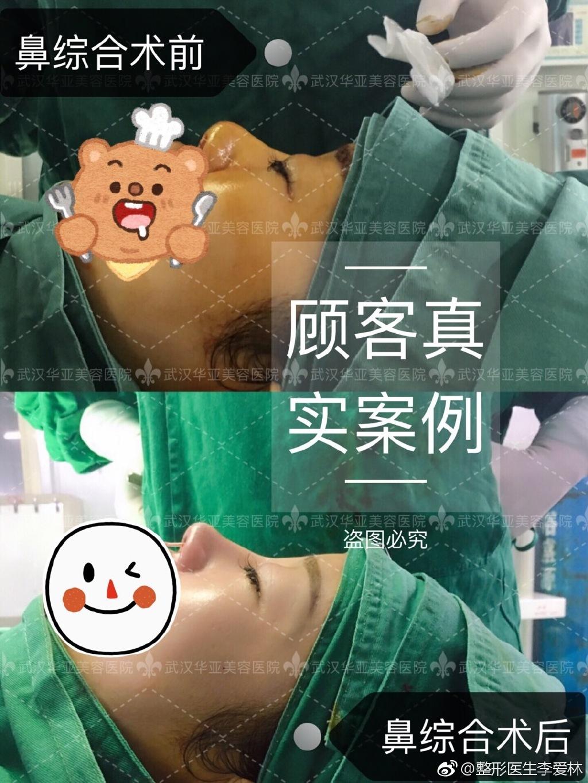 李爱林鼻综合案例