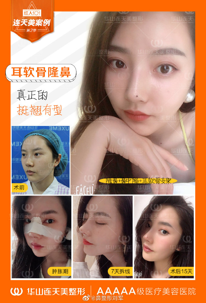 杭州连天美刘军隆鼻案例