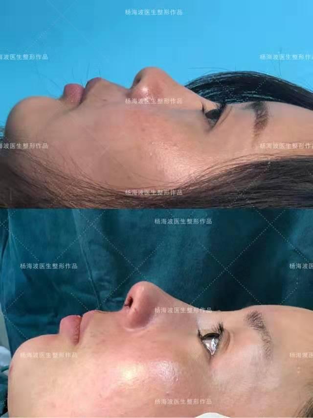 杨海波鼻综合案例