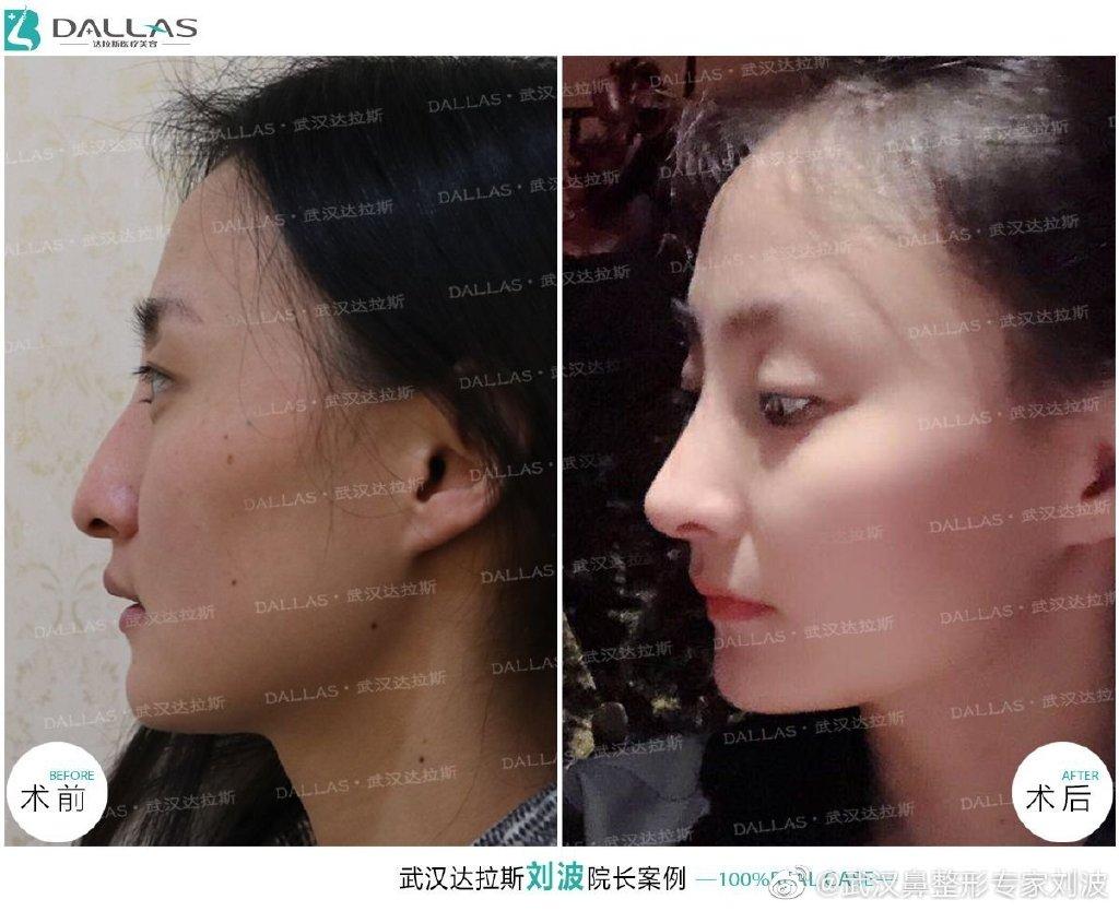 刘波隆鼻案例