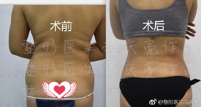 腰部吸脂案例