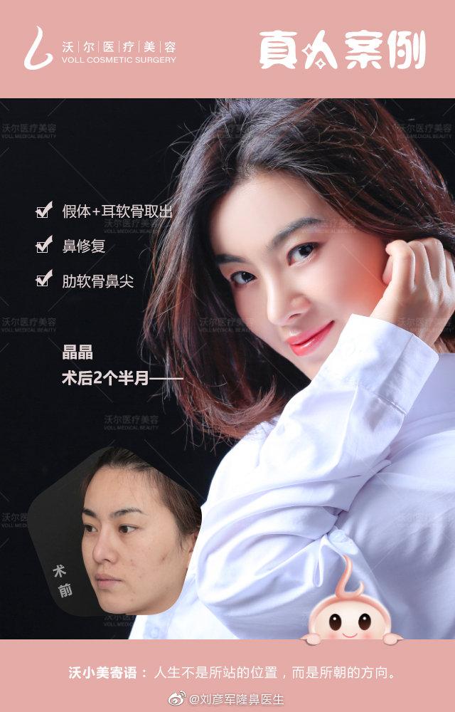 北京和上海隆鼻专家都有哪些?李占强PK刘彦军哪个做隆鼻最好?