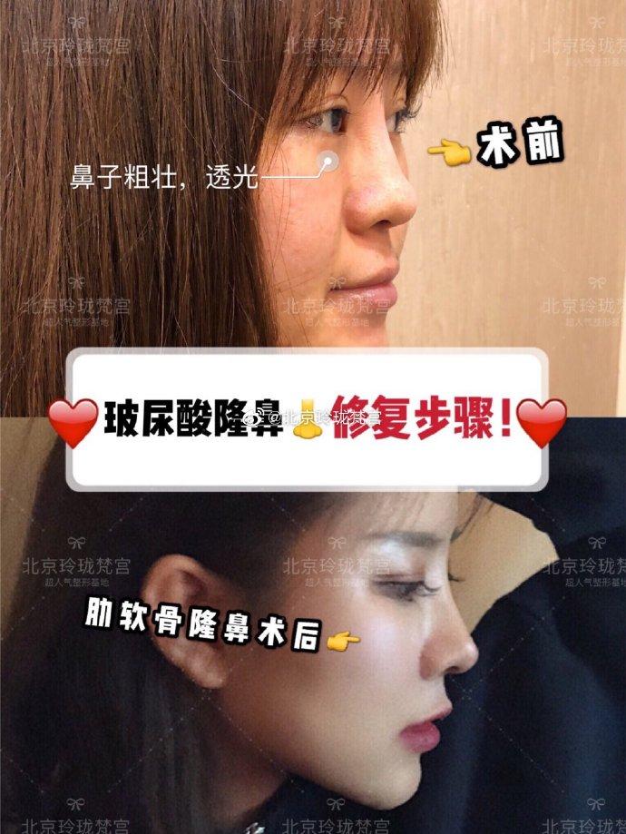 王光辉鼻子案例