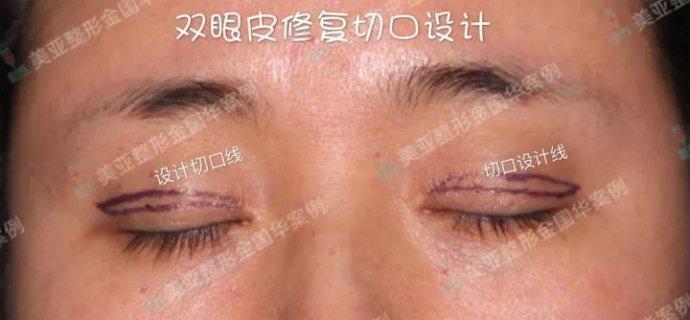 金国华双眼皮修复案例